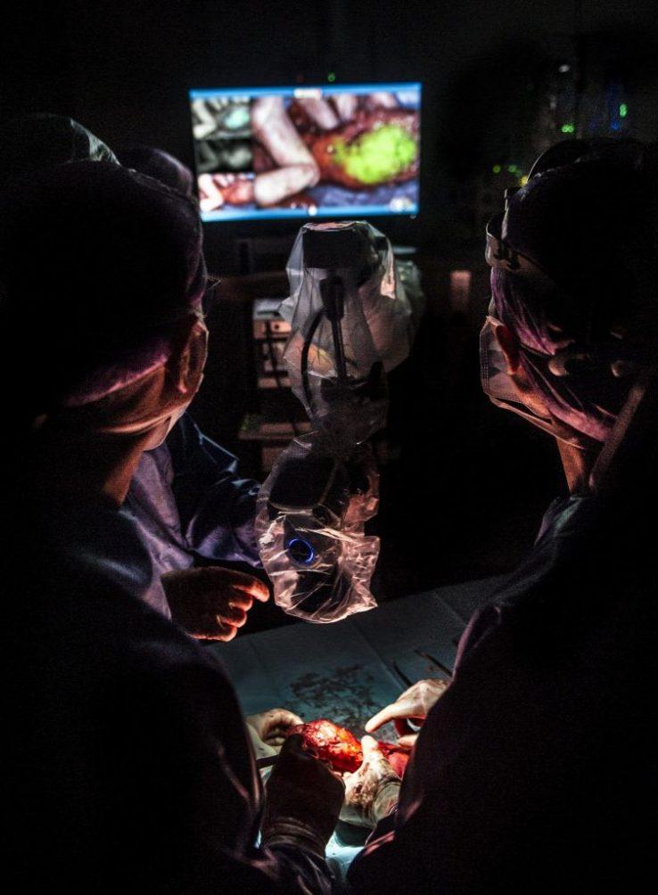 catharina ziekenhuis endeldarmkanker onderzoek