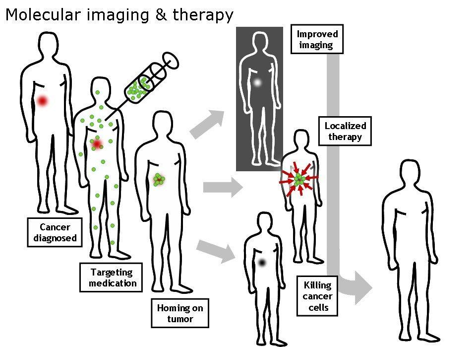 MolecularImagingTherapy