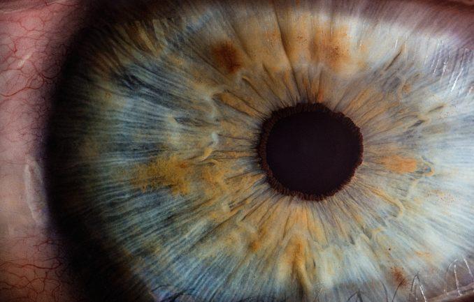 Augenlinse, Proteine, Protein, alpha-A-Kristallin,