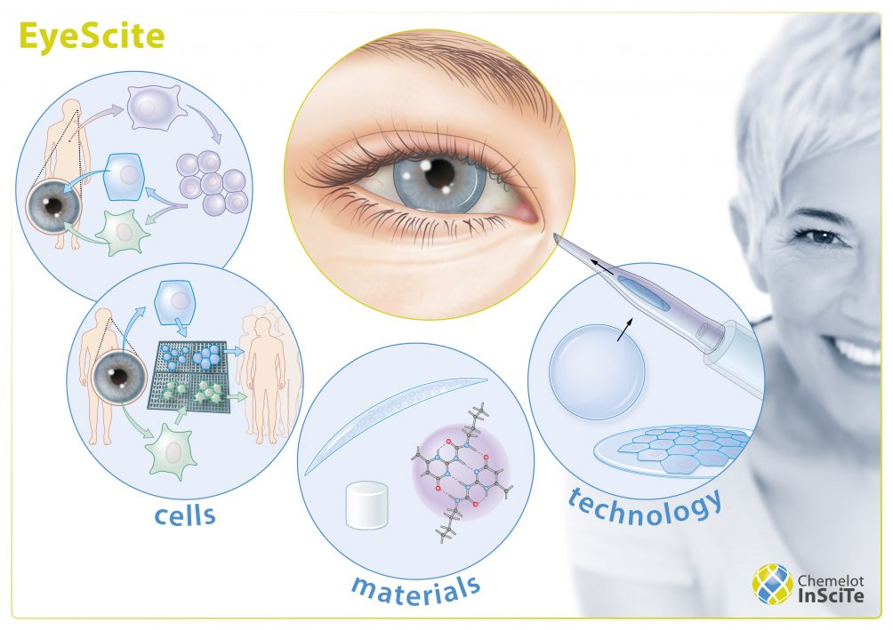 This image has an empty alt attribute; its file name is EyeScite-ENG-1004x709.jpg