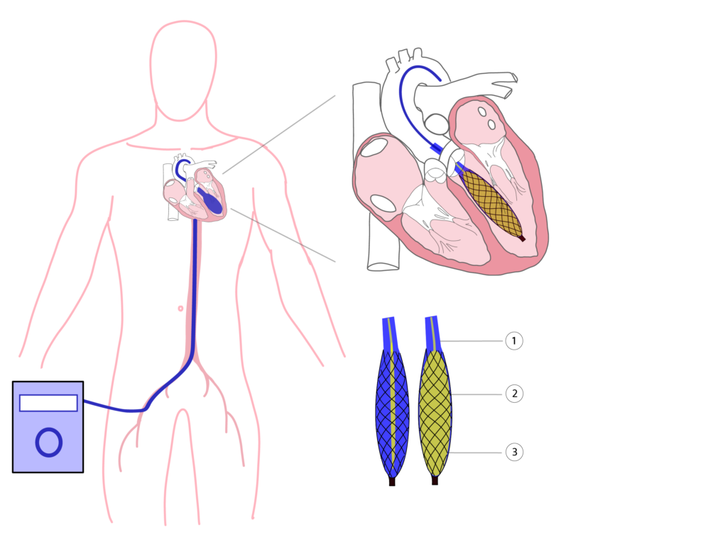 This image has an empty alt attribute; its file name is Illustratie-Cardiacbooster-1004x753.png